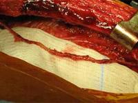 pontage-coronaire
