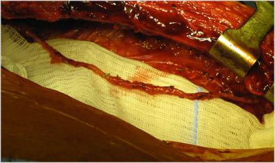 prelevement-artere-mammaire