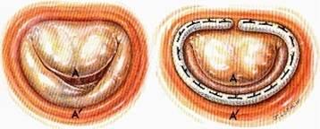 annuloplastie-mitrale-1