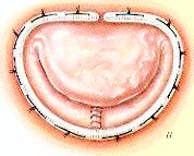 resection-quadrangulaire-avec-plastie-de-glissement-5